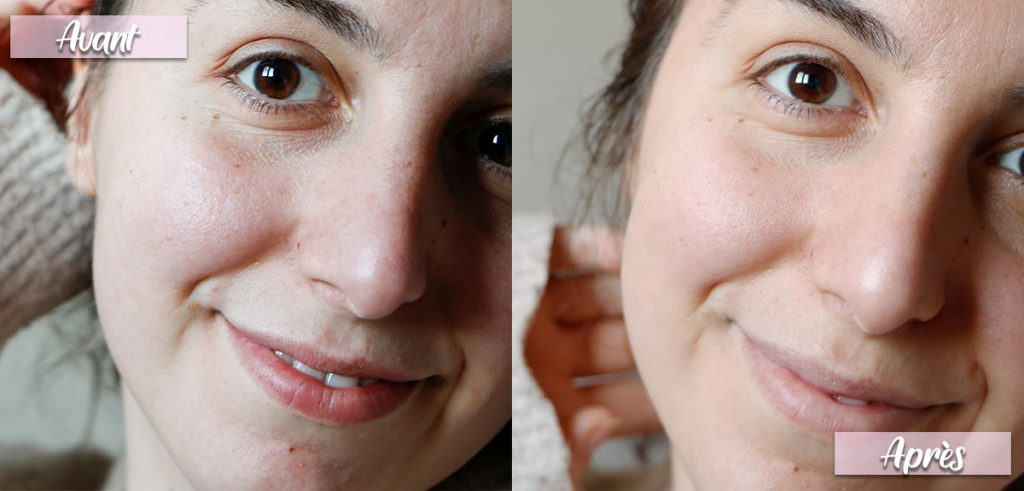 Avant-après-apicia-soin-visage-teint-progressif